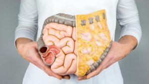 How To Take Care of Gastrointestinal?